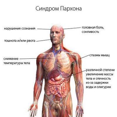 Клиническая картина и типовое течение синдрома Пархона