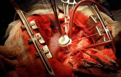 Способы лечения врожденных пороков сердца у детей