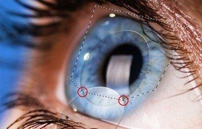 Операции типа LASIK - новая жизнь с острым зрением