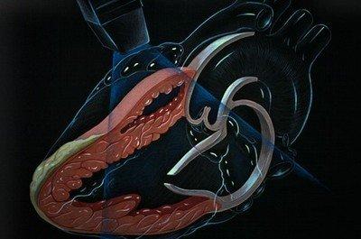Эхокардиография сердца - прекрасная возможность посмотреть сердечную деятельность