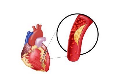 Ишемическая болезнь сердца - одно из показаний к коронарографии