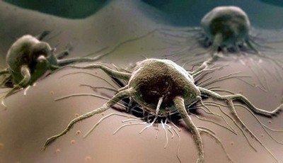 Рак - неконтролируемое разрастание клеток