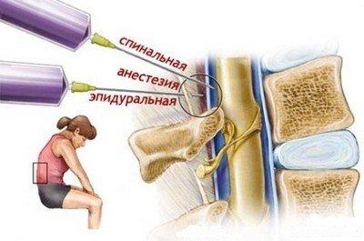 Отличия эпидуральной анестезии от спинальной