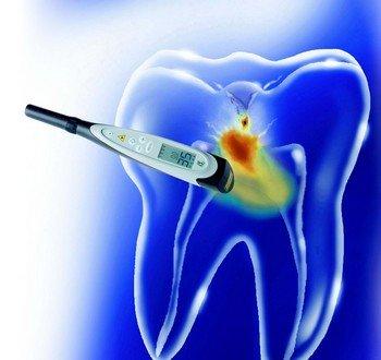 Использование лазерной флюоресценции с помощью «DIAGNOdent»