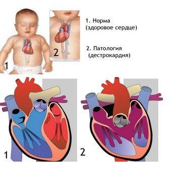 Правостороннее расположение сердца носит название «декстрокардия»