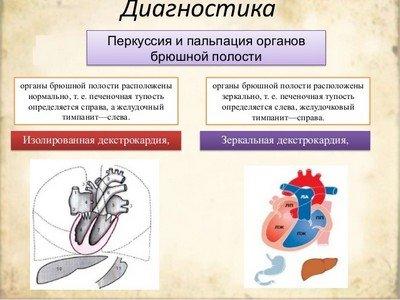 Диагностика декстрокардии