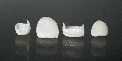 Облицовка зубов винирами или эмалевой заготовкой в восстановлении коронок зубов