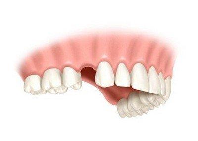 К чему может привести потеря зуба