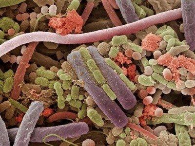 Бактерии полости рта - причина кариеса