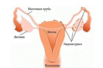Эндометриоз: симптомы, лечение, диагностика