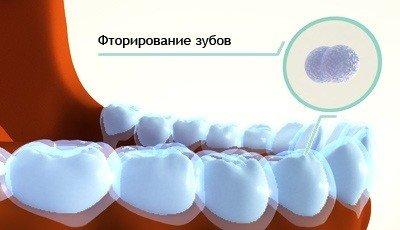 Фторирование зубов для защиты эмали