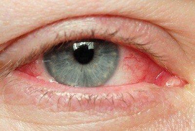 Факторы, способствующие покраснению глаз