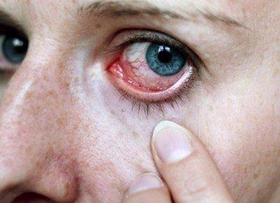 4 основные причины возникновения красных глаз
