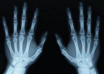 Почему рентгеновские снимки столь важны в травматологии