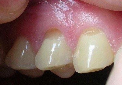 Какая существует классификация клиновидных дефектов зубов?
