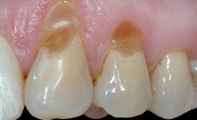 Клиновидный дефект зубов - разновидность некариозного поражения зубов