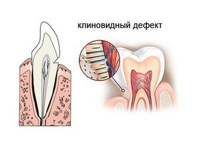 Пример клиновидного дефекта зуба