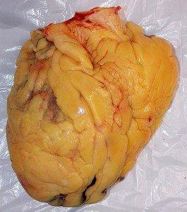 Ожирение сердца - часта причина миокардиодистрофии