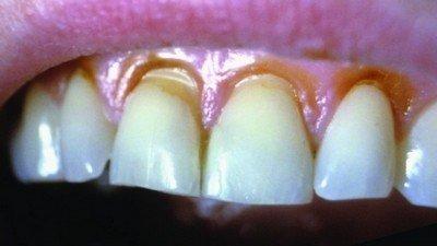 Каковы причины клиновидного дефекта зубов
