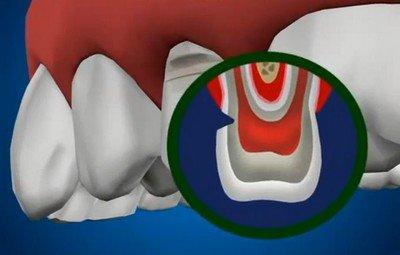 Как правильно лечить клиновидный дефект зуба незначительных размеров