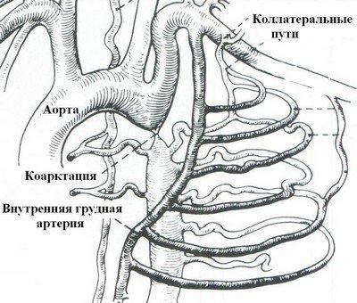 Схематичное изображение коарктации аорты
