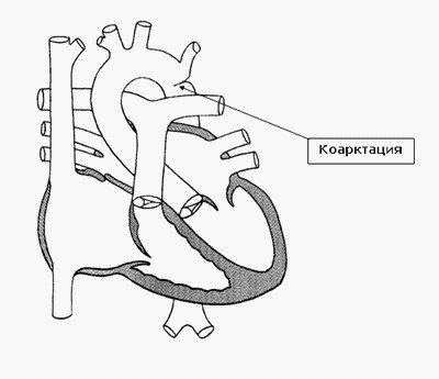 Коарктация  - сужение аорты