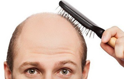 Лечение облысения средствами против выпадения волос