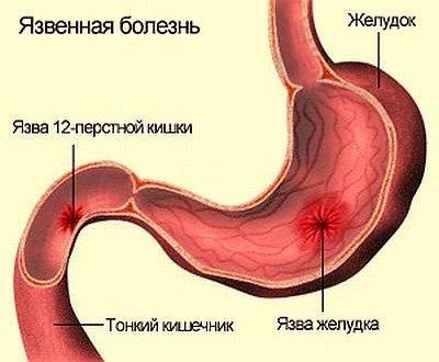 Расположение язвы желудка и двенадцатиперстной кишки