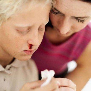 Лечение носовых кровотечений у детей