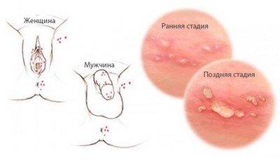 Клиника герпетической острой вирусной инфекции у взрослых, беременных и плода