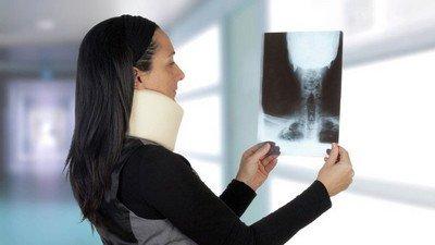 Повреждение двух верхних шейных позвонков: виды и рентгенодиагностика