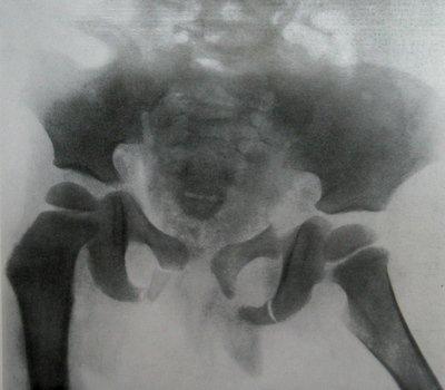 Рентгеновский снимок перелома переднего тазового полукольца у ребенка в прямой проекции