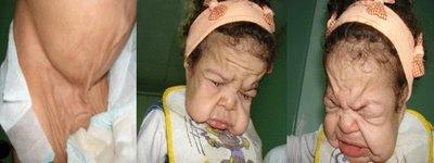 Ребенок страдающий cutis laxa