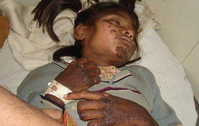Девочка, больная болезнью Хартнупа