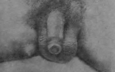 Снимок добавочной грудной железы на ягодице у мужчины, предоставленный Ферстером