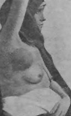 Добавочная грудная железа подмышкой без соска. Фотография предоставлена ростовской клиникой.
