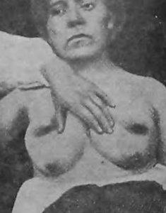 Две добавочные грудные железы у женщины