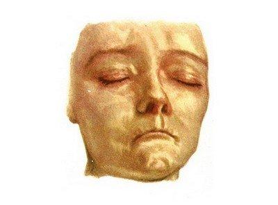 Полуатрофия лица - склеродермия