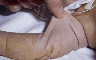 Cutis laxa - заболеванием сопровождающееся образованием «излишней» кожи