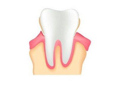 Существует ли зависимость восстановления костной ткани от форм периодонтита