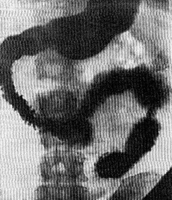 Изменение положения и формы двенадцатиперстной кишки вследствие давления на нее извне