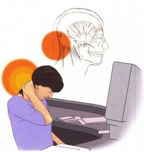 Причина головных болей в затылке - перенапряжение затылочных мышц