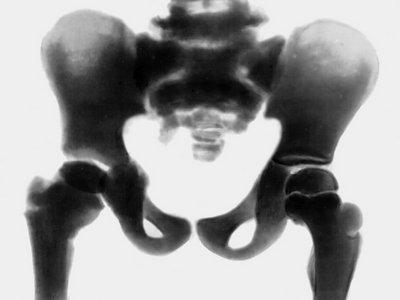 Диагностика оскольчатого перелома костей таза с образованием околопузырной гематомы
