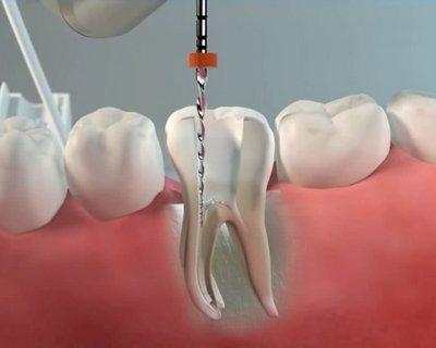 Инструментальная обработка канала корня зуба