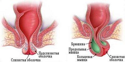 Искусственное выпадение прямой кишки: диагностика и лечение