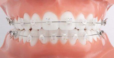 Ортодонтия применяет исправление прикуса брекетами