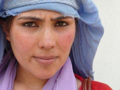 Лейшманиоз у молодой афганки (снимок ВОЗ)