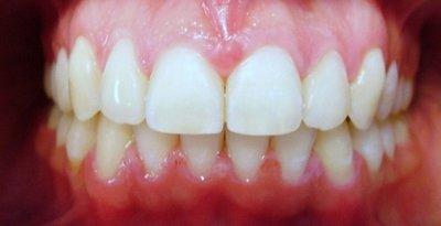 Нормальный прикус не интересен ортодонтии