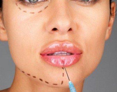 Накачивание губ гиалуроновой кислотой