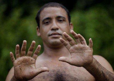 Лишние пальцы (полидактилия)